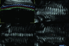 ecube15_platinum_gallery15_fetal_spine_with_anyslice