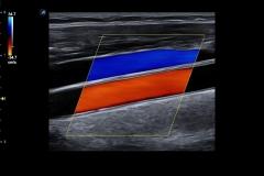 ecube15_platinum_gallery1_carotid_artery_and_jugular_vein_in_color
