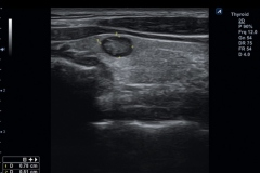 ecube9_diamond_gallery17_thyroid_with_mixed_echogenic_nodule