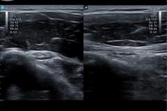 ecube9_diamond_gallery19_biceps_transverse_and_longitudinal_imaging