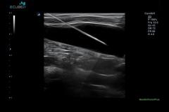 ecubei7_gallery14_internal_jugular_vein_injection_with_needle_vision_plus