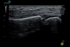 ecubei7_gallery15_mcp_join_and_its_tendon_with_transducer